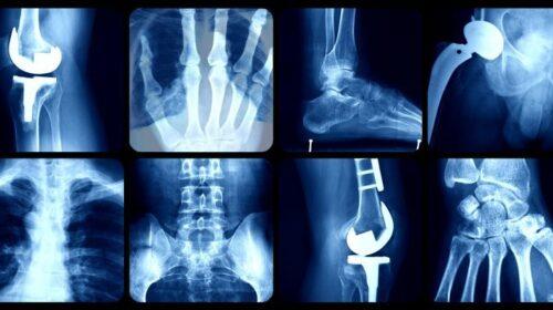 Musculoskeletal injuries in Real Tennis